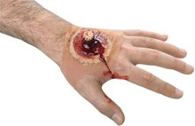 Picture of Splintered Hand Wound Sleeve