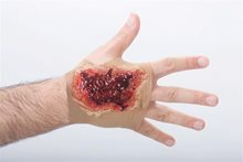 Picture of Acid Burn Hand Sleeve